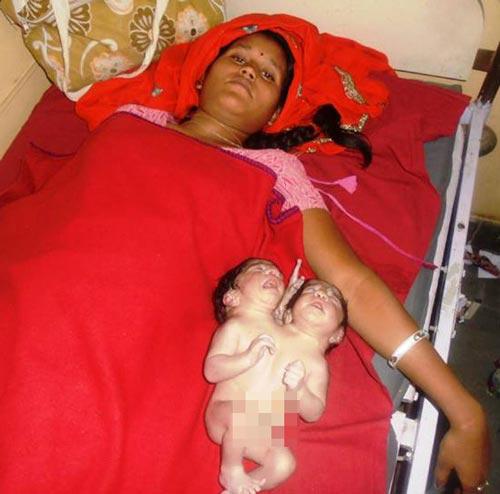 زنی هندی نوزادی 2 سر به دنیا آورد !+ عکس