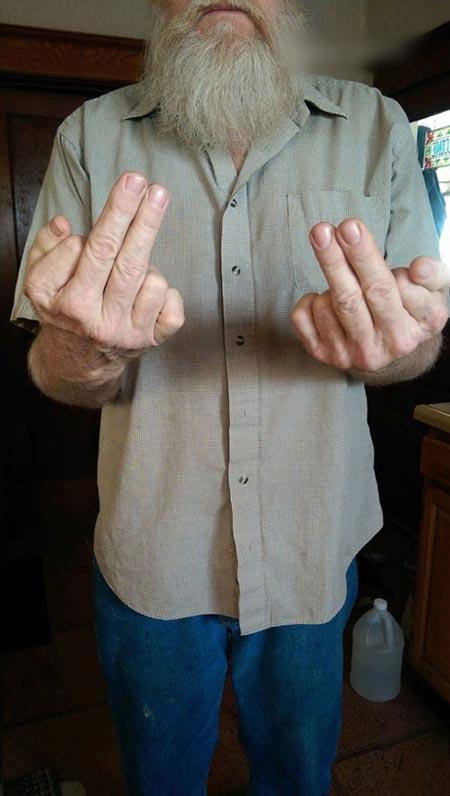 مرد جالبی با 12 انگشت ! (عکس)