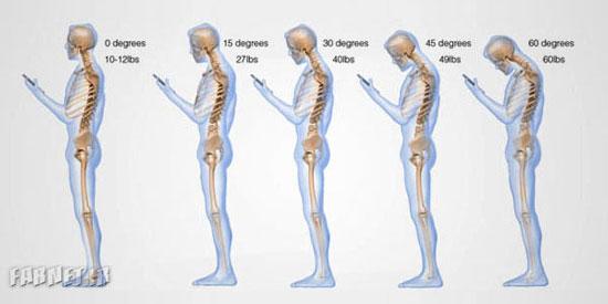 خطرات استفاده بیش از حد از موبایل برای سلامتی