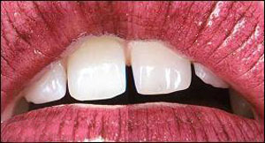 شخصیت شناسی از روی دندان