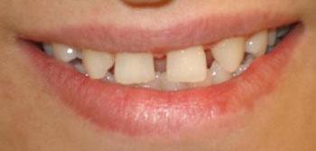 روش درمان فاصله دندان