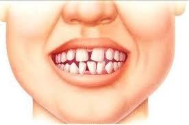 فال دندان