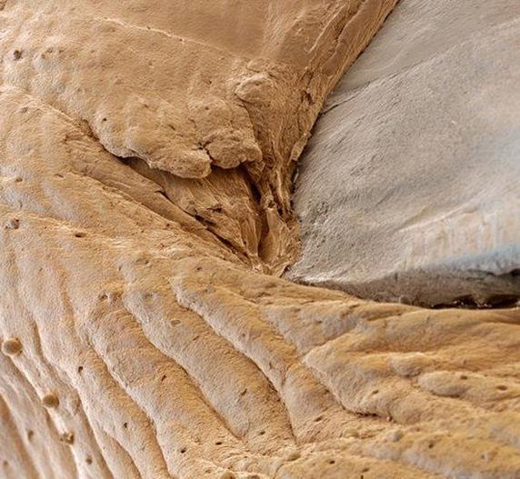 عکس هایی دیدنی از بدن انسان با بزرگ نمایی