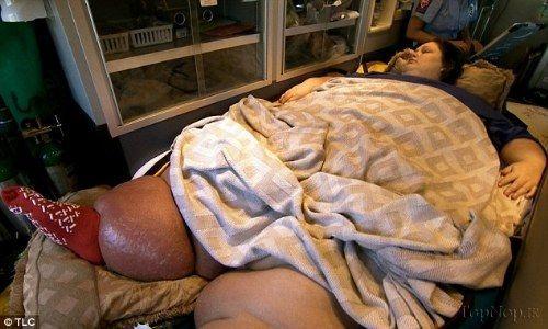 تصاویر کاهش وزن ۵۰۰ کیلویی این زن