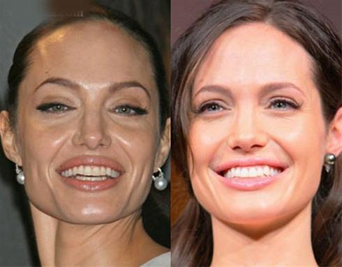 عکس آنجلینا جولی قبل و بعد از جراحی زیبایی