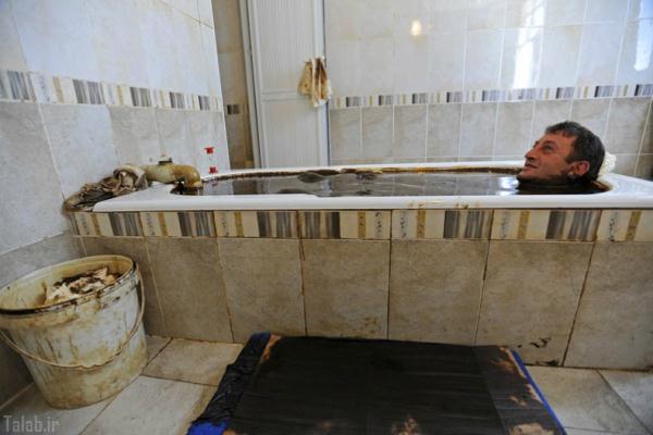 نفت درمانی عجیب در کشور آذربایجان (عکس)