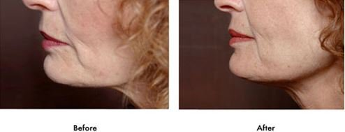 تصاویر انواع زیبایی پوست با طب سوزنی