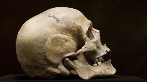 جراحی عجیب مغز در 3600 سال پیش (+عکس)
