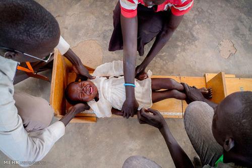 عکس های دلخراش از سوء تغذیه شدید در سودان جنوبی