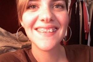 دختری که به خاطر دندان هایش 2 میلیون دلار به جیب زد