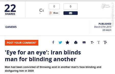 حکم قصاص اسید پاشی چشم اجرا شد (عکس)