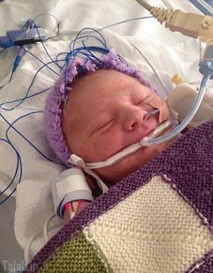 نوزادی که مرد و زنده شد + عکس