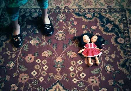 زندگی دوقلوهای به هم چسبیده + تصاویر