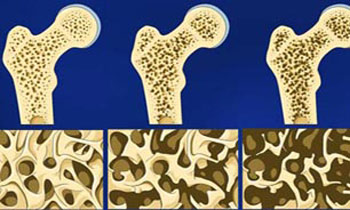 10 توصیه مفید برای تقویت استخوان ها