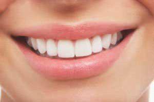 تا عید نوروز دندان های سفید داشته باشید
