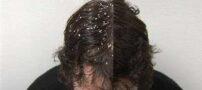 علت و درمان شوره سر چیست ؟