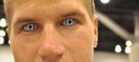 عکس هایی از عجیب ترین لنزهای چشم
