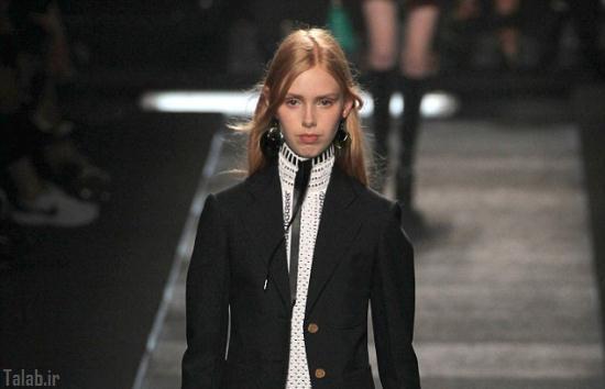 مدل 16 ساله که لقب اسکلت زنده را گرفت + عکس