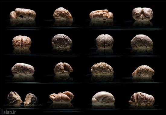 کلکسیونی جالب از مغز انسان ها + تصاویر