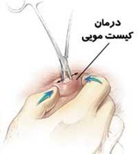 پیشگیری و درمان کیست مویی در پایین کمر