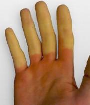 دلیل یخ کردن انگشتان دست و پا