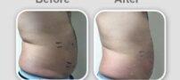 ورزش هایی برای رفع چاقی شکم و باسن