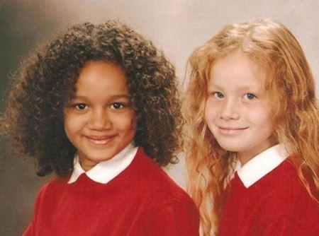 تفاوت بسیار جالب چهره دو خواهر دوقلو ! ( +عکس)