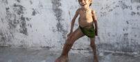 بیماری عجیب پسربچه 4 ساله هندی (+ عکس)