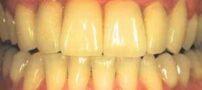 چرا دندان ها زرد می شوند ؟