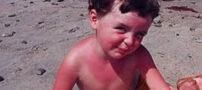 راه هایی برای درمان آفتاب سوختگی