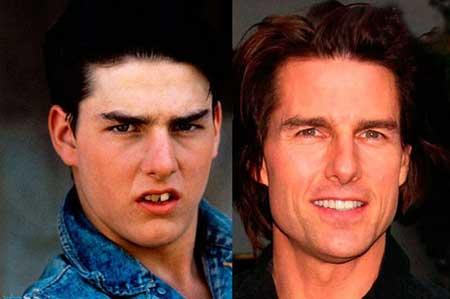 چهره های معروف هالیوودی که دندان های مصنوعی دارند (عکس)