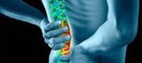 روش های طبیعی برای درمان کمردرد