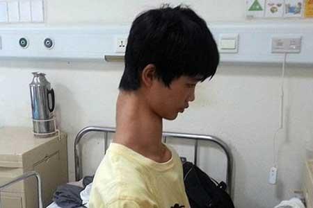 پسر چینی با گردنی عجیب (عکس)