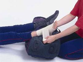 درمان رگ به رگ شدن و کبودی ها چگونه است؟
