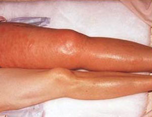 بیماری آمبولی ریوی چیست و چگونه درمان می شود؟