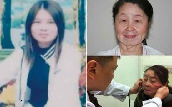 زن جوانی که در عرض 6 ماه پیر شد + عکس