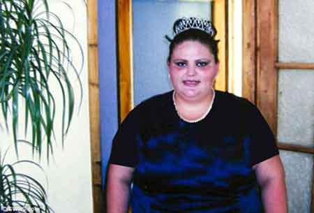 زیبایی خاص این زن پس از 80 کیلو کم کردن وزن