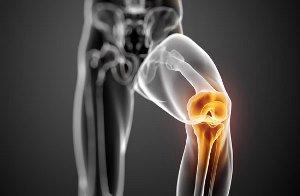 درمان درد آرتروز با این روش ها