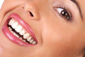 4 روش طبیعی برای سفید کردن دندان ها