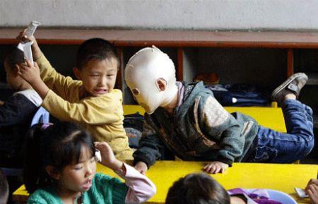 زندگی دردناک پسربچه ای بدون چهره + عکس