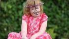 دختری که صورتش متلاشی شده است (عکس)
