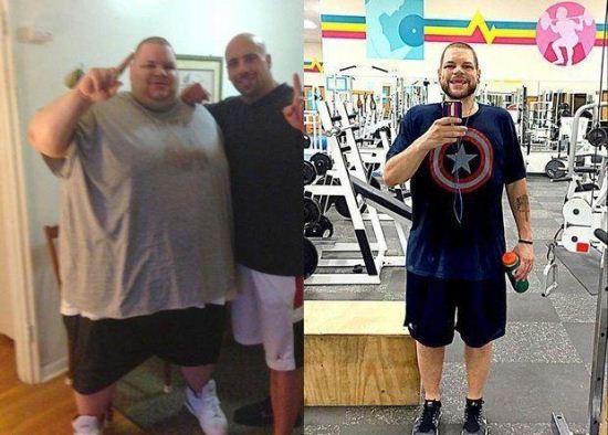 کاهش وزن 180 کیلویی این مرد + عکس