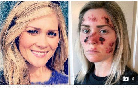 نابود شدن صورت دختری به خاطر برنزه کردن + عکس