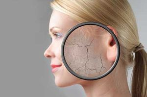 به چه علت پوست خشک می شود + راه های رفع آن