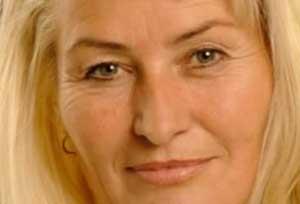 چگونه پوستی سالم با بالا رفتن سن داشته باشیم ؟