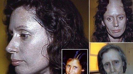 خانمی که شبیه آدم فضایی ها است + عکس