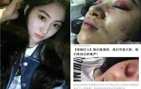 کتک زدن دختری به خاطر رد پیشنهاد جنسی + عکس