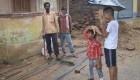 پسربچه هندی با دستهای غولآسای عجیب (+تصاویر)