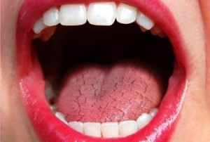 7 راه موثر برای رفع خشکی دهان