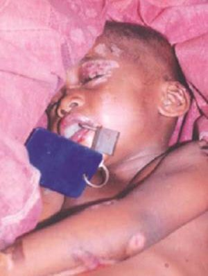 پدری که به دهان فرزندش قل زد (عکس)